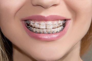 Сколько будут стоить брекеты на зубы с изготовлением и установкой