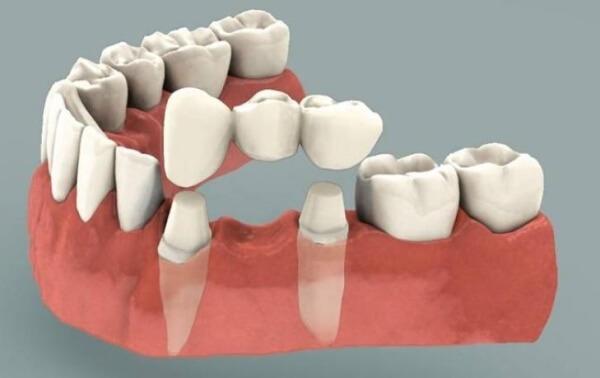 Сколько стоит вставить золотой зуб