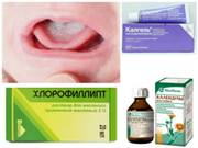 Стоматит у ребенка чем лечить