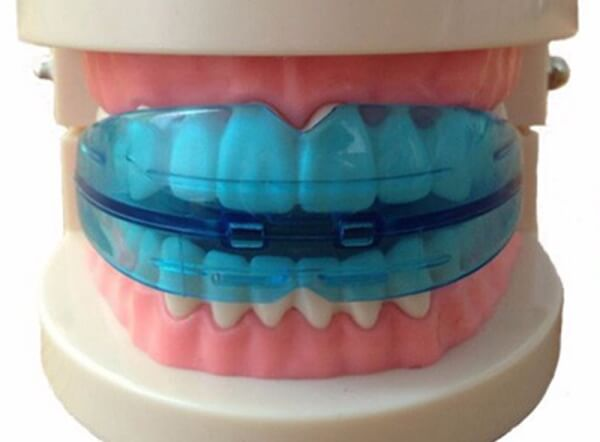 Конструкция на зубах