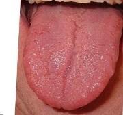 Причины трещин на языке посередине