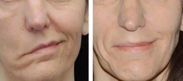 Диагностика воспаления лицевого нерва