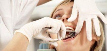 Сложности при удалении зуба мудрости и возможные последствия операции