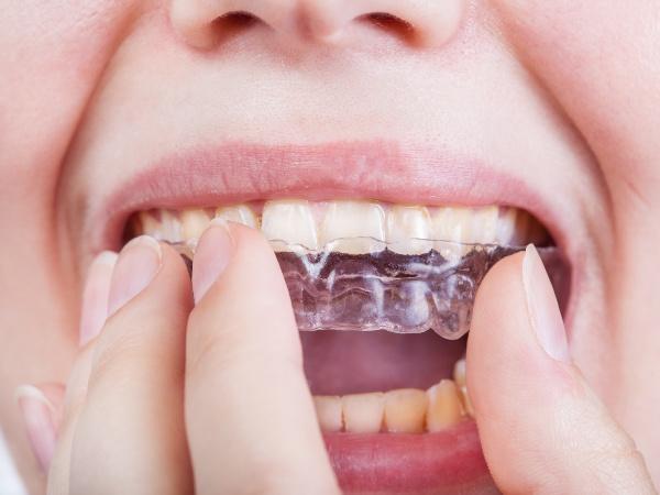 Можно ли выровнять зубы без брекетов