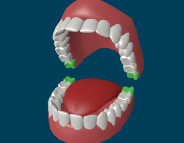 Сложности и сопровождающие прорезывание зуба мудрости симптомы