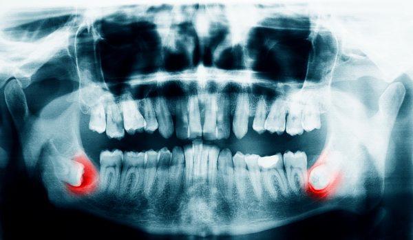 Как болит зуб мудрости симптомы