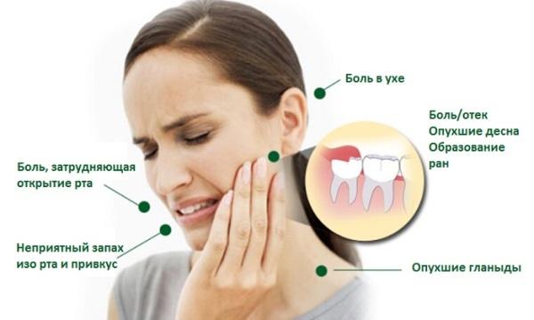 Зуб мудрости симптомы температура