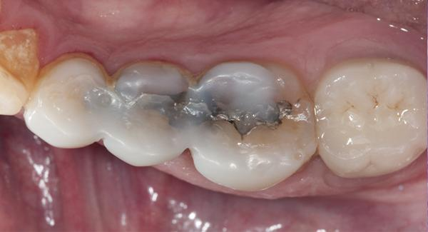 Зуб залечен но реагирует на горячее