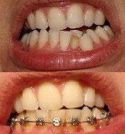 Фото зубов до и после применения брекетов