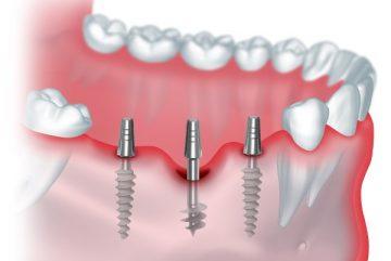 Порядок проведения базальной имплантации зубов и отзывы о методике