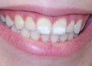 Отчего на зубах белые пятна