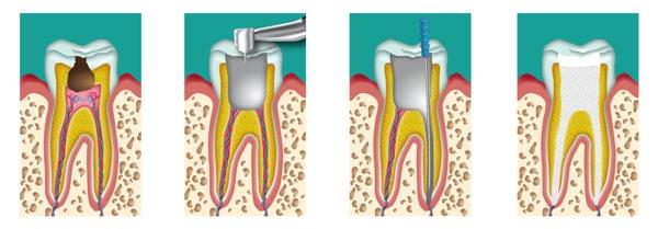 После чистки каналов болит зуб при нажатии что делать