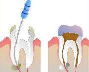 Сколько стоит чистка каналов зубов