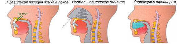 Трейнер для зубов ортодонтический т4к купить