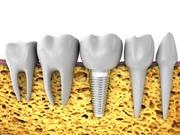 Об этапах имплантации зубов