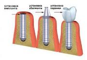 Фото этапов имплантации зубов