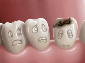 Стадии кариеса зубов – фото и описание