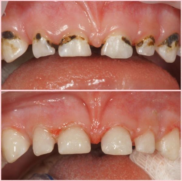 Серебрение молочных зубов фото