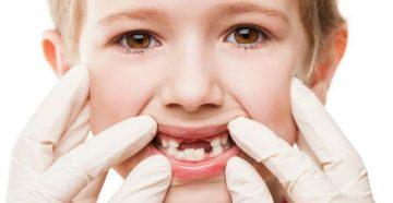 Гингивит у детей – лечение полосканием, гелями и народными средствами