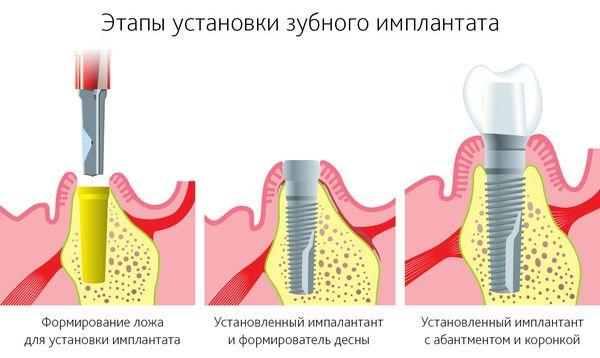 2 этап имплантации зубов