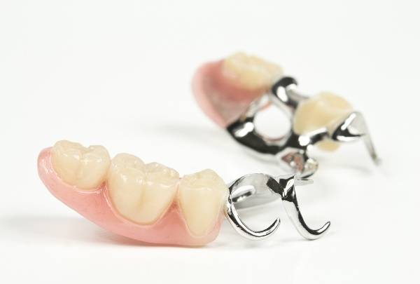 Какие зубные протезы лучше ставить