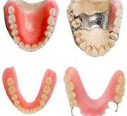 Какие лучше вставлять зубные протезы