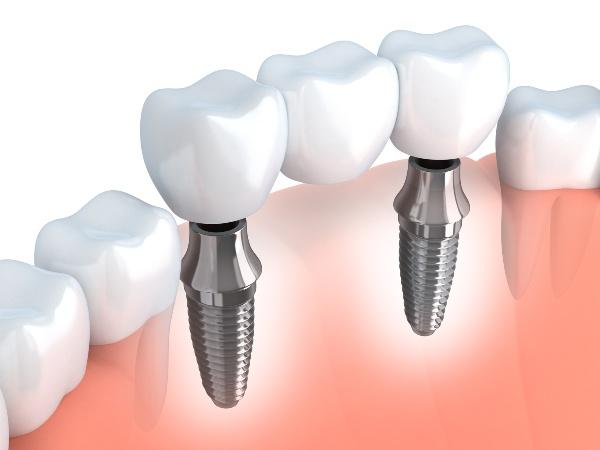 Какие зубные протезы самые лучшие
