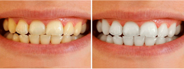 Аmazing white professional отбеливание зубов отзывы