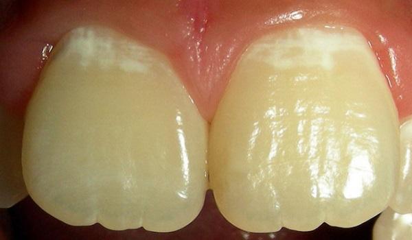 Кариес зубов стадии и фото