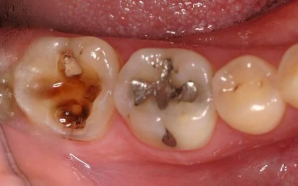 Кариес на зубах стадии и фото