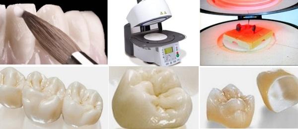 Керамические коронки на передние зубы цены