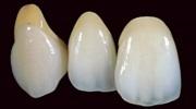 Особенности керамических коронок на передние зубы