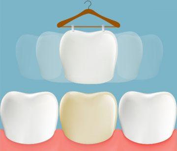 Фото пациентов до восстановления композитным виниром зоны улыбки и после