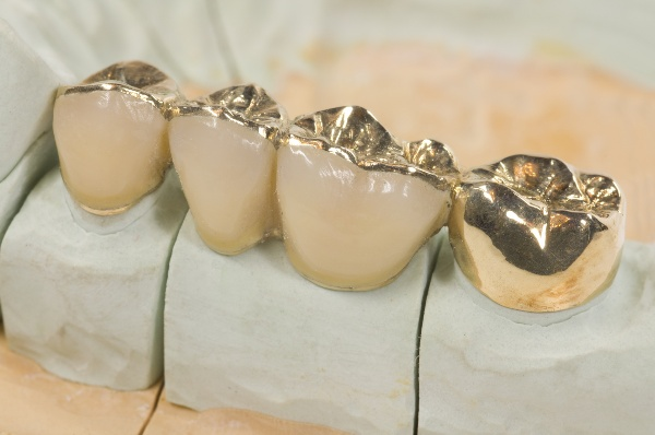 Вставить зубы металлокерамика цена