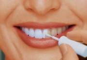 Лак для эмали зубов