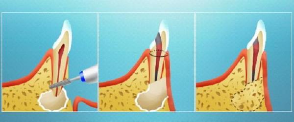 Гранулема киста зуба лечение отзывы