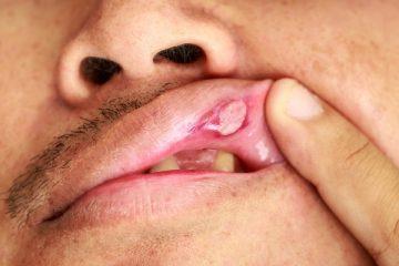 Средства для профилактики и лечения язвы во рту