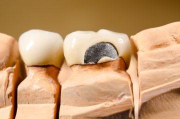 Цены зубов из металлокерамики и стоимость услуг специалистов