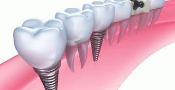 Применение миниимплантов в ортодонтии и в ортопедии