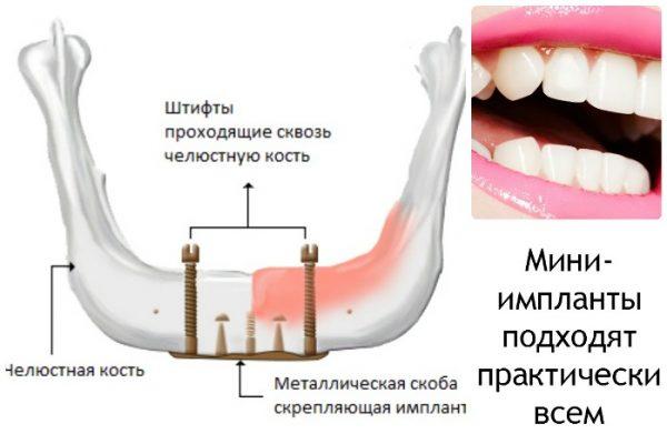 Миниимпланты съемный протез отзывы