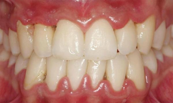 Плазмолифтинг в стоматологии отзывы врачей