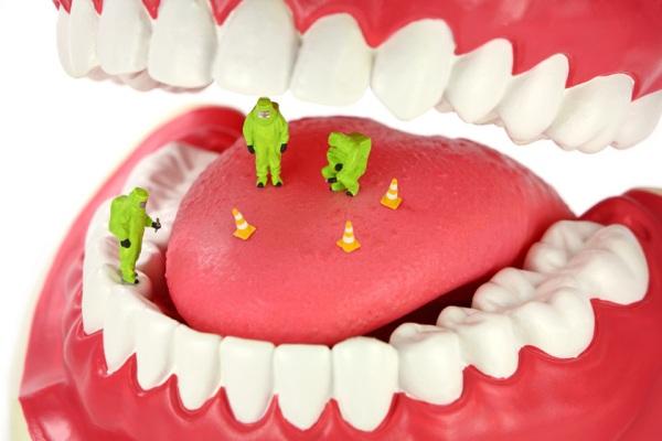 Присутствие бактерий во рту