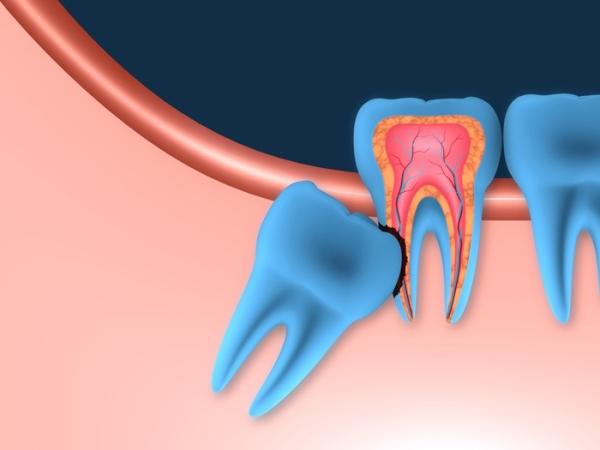 Прорезается зуб мудрости болит десна что делать