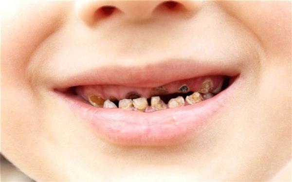 Серебрение молочных зубов отзывы