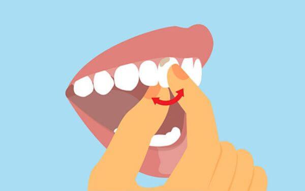 Шатается зуб как укрепить