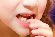 Шатаются молочные зубы что делать