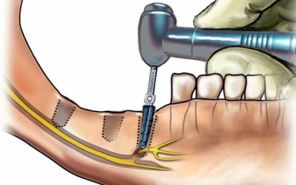 Как выглядит зубной нерв когда его удалили