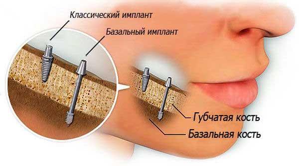 Сколько стоит установка имплантата зуба