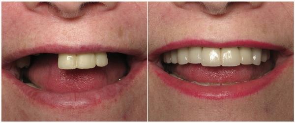 Фото до и после восстановления