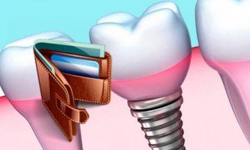 Сколько стоит имплантат зуба, цена установки и дополнительных услуг
